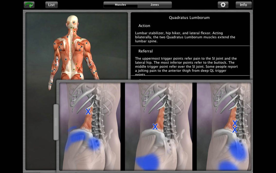 Muscle Trigger Point Anatomy - Know the Body